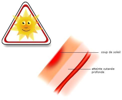 Soulagez vos coups de soleil les douleurs engendr es par les coups de soleil - Creme pour coup de soleil ...